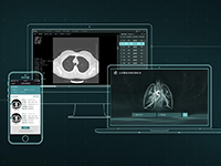 点内人工智能肺小结节筛查引擎